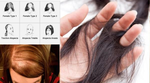 """How to Stop Hair Loss in Women- Hair loss in women is usually caused by an autoimmune disorder. I say """"usually"""" because I do not want to generalize but, and this is a big but, I have yet to see a woman suffering from hair loss that isn't suffering from an autoimmune disorder in over thirty years of private practice."""
