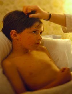 Home Remedies for Eczema in Children. http://vanisheczema.com/eczematreatment/?hop=0