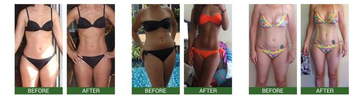 Before and after pictures using Garcinia Cambogia Plus