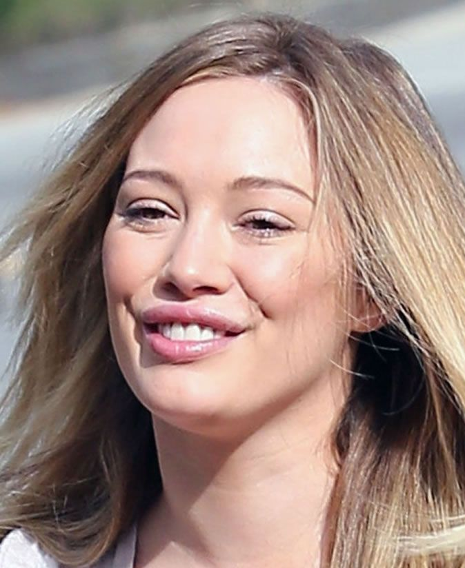 Has Hilary Duff Went Overboard With Lip Injections? See Her Latest Look