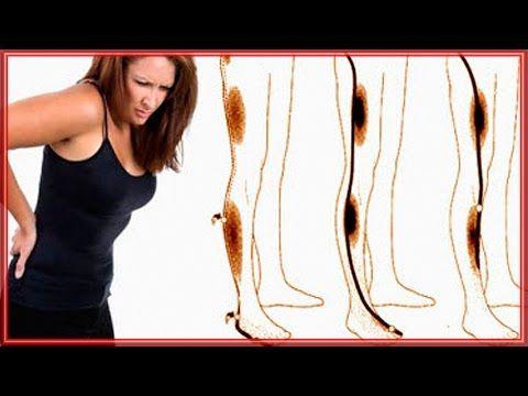 Как вылечить защемление седалищного нерва одним упражнением - YouTube