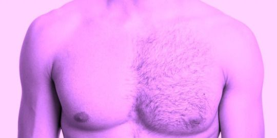 WHY LASER HAIR REMOVAL IS NOT JUST FOR WOMEN.
