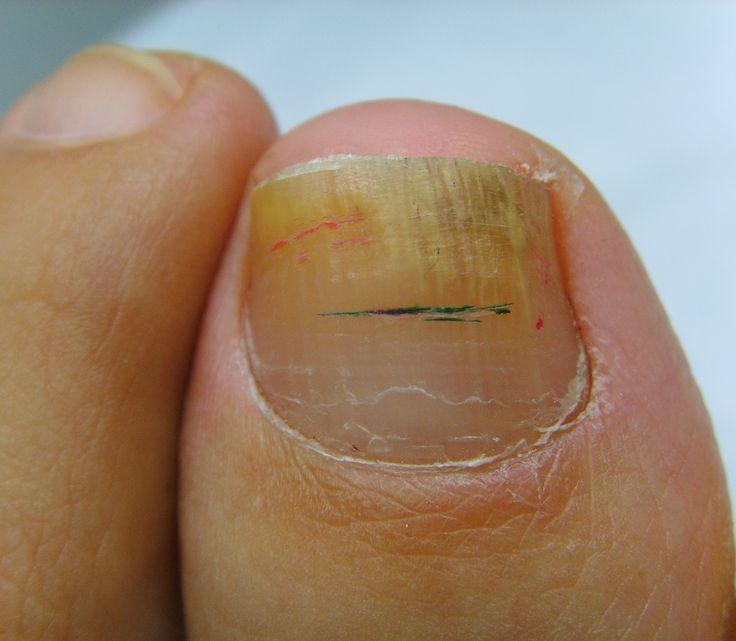 newlaserimage.com #toenail #ToeNailLaser #Laser #RedondoBeach #MedSpa What is #ToeNailFungus ?
