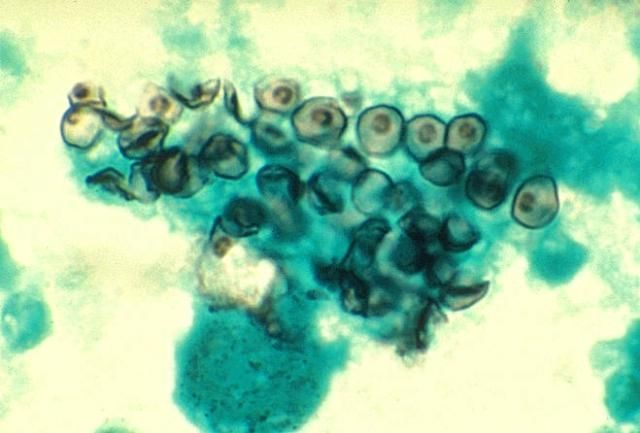 Pneumocystis jiroveci  electron micrograph - HIV Opportunistic Infection
