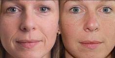 Best wrinkle fillers (procedures and otc creams)