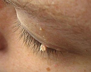 Skin tags on eyelids, under the eye andaround the eye are easy to identify. According