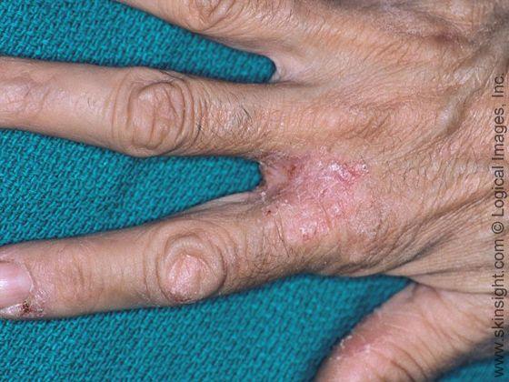 Hand Eczema | Dyshidrotic eczema | Pinterest