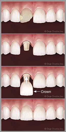 Porcelain crowns not only replicate the original tooth in terms of function, but can be designed to look like the original - or even better. When patients select a porcelain veneer for cosmetic reasons, they're usually covering up the front portion of the tooth that has some esthetic flaw. A porcelain crown is thicker than a veneer. #porcelain crowns #cosmetic dentist jupiter fl