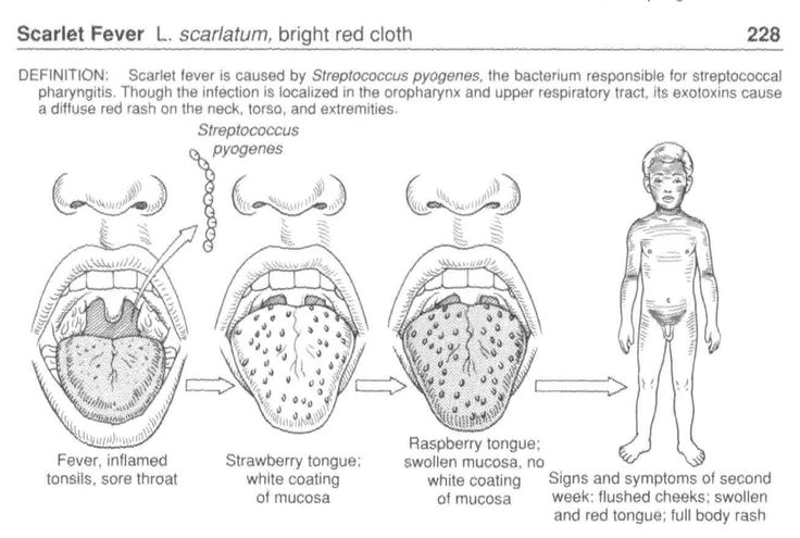 scarlet fever. check out brigette, morgan and gable's review of, Cephalic Vein