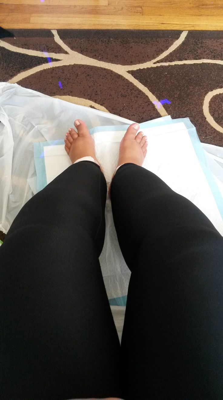 tumescent-liposuction surgery for lipedema, one woman's experience