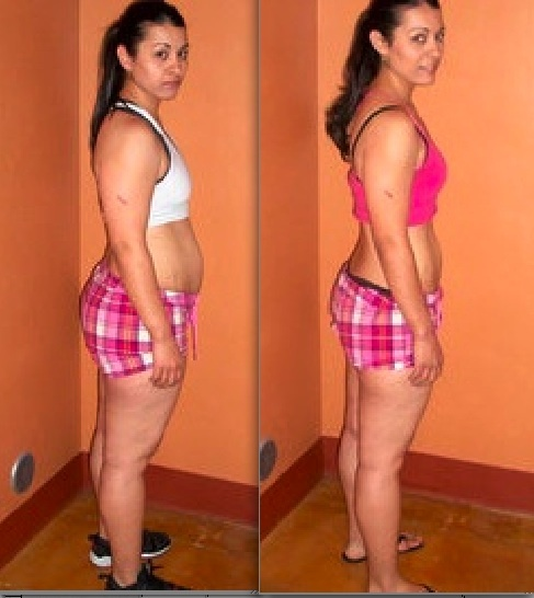 How fast do laxatives work for weight loss picture 7