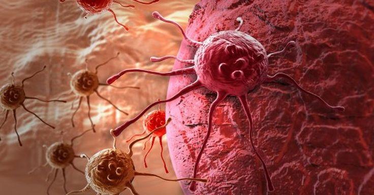 Ako zistiť s 2 až 4 ročným predstihom, že vám hrozí rakovina