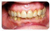 Affordable porcelain veneers, porcelain crowns offer by Blackburn, Melbourne based dental veneers clinic – HealthySmiles. Book your porcelain veneers appointment today. http://www.healthysmiles.com.au/cosmetic-dentistry/porcelain-crown-and-veneers.html