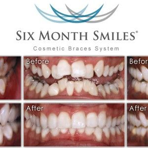 6monthsmile | My experiences with 6 Month Braces