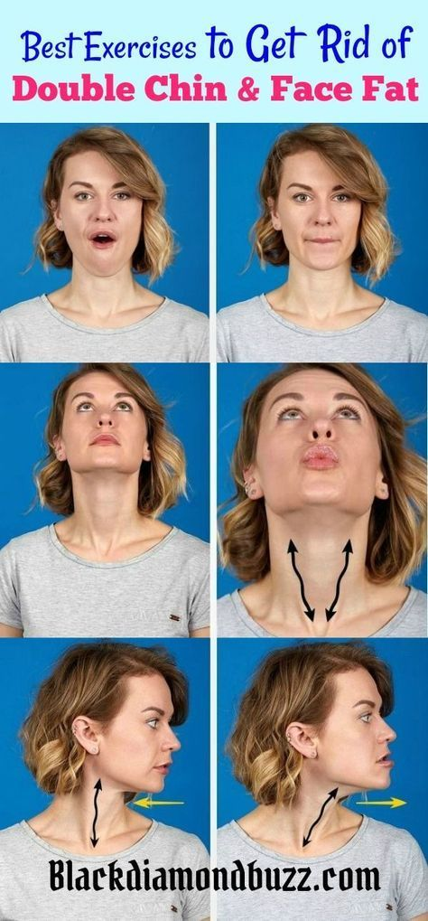 How to Get Rid of Double Chin and Chubby Cheeks Fast. Try these best exercises and home remedies to lose fat on the face. #howtolosebellyfat