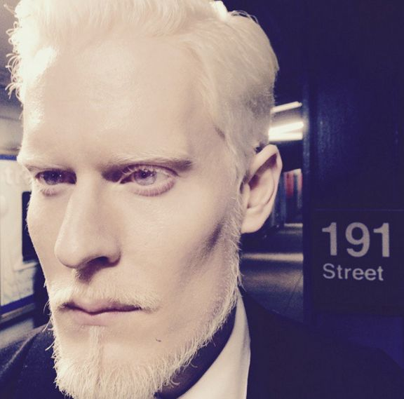 Stephen Thompson | 14 Models With Albinism Who Are Taking The Fashion World By Storm