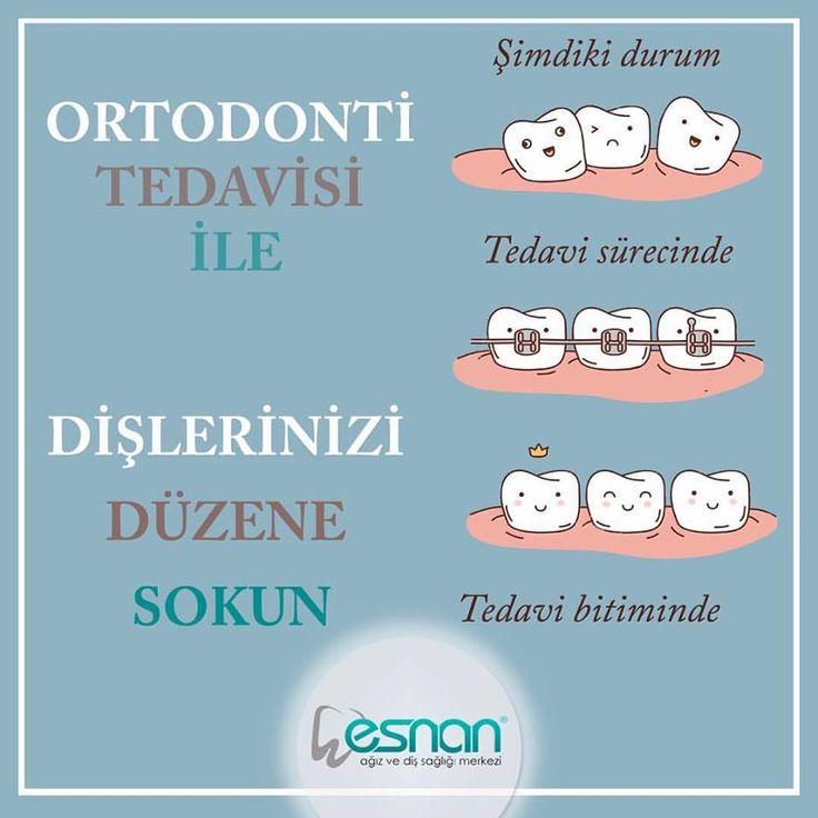 Ortodonti Tedaviniz için şubelerimize bekleriz...   #ortodonti #esnan #dişsağlığı #dentalhospital #dişkliniği #dentist