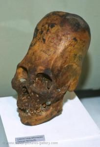 A Paracas skull: note the dimple toward the top of the head, which is a product of head-binding, depressing the suture between the parietal plates that Brien Foerster claims does not exist