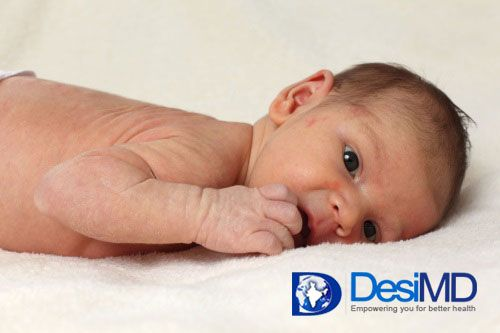 Eczema occurring in infants is known as infantile eczema. It is also known as atopic dermatitis.More than 10 percent of infants have eczema at some point but majority of these victims improve before they are 2 years old. Eczema is characterized by an itchy skin rash that can present itself on a baby's delicate skin when the baby is as young as 2 months old.