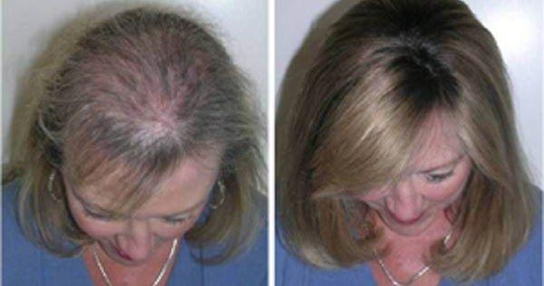 Huile de ricin pour la croissance et l'épaisseur des cheveux