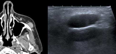 This patient presented with a previously rapidly growing lesion over the left cheek which had recently stopped growing. Right: On ultrasound the lesion is well defined and hypoechoic. Left: CT reveals a well defined, homogenous, enhancing soft tissue density lesion. Excision biopsy diagnosed nodular fasciitis.