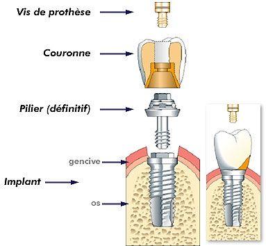 Cabinet dentaire du Dr Pascal GUILLEMIN Chirurgien Dentiste GOUESNOU (29) - Implants dentaires