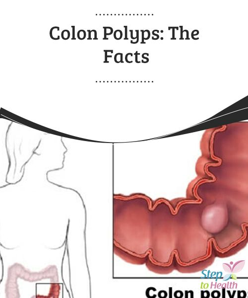 Colon #Polyps: The Facts   #Colon polyps should not be ignored, as they can become #cancerous. A colonoscopy is necessary for early #detection and removal. Learn more in our article.