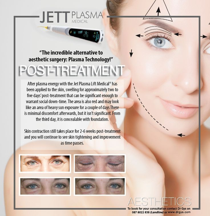 The Incredible Alternative To Aesthetic Surgery Plasma Technology Post T Aesthetic Alternative Skin Tightening Skin Aesthetics Skin Brightening Diy