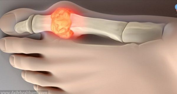 Gout is a form of inflammatory arthritis which is characterized by recurring attacks of red, tender, hot and swollen joint. The pain occurs suddenly usually in the big toe first which becomes sore,…