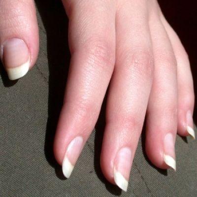 Verkleurde nagels zijn niet aantrekkelijk. Hoe maak je nagels witter? Kan dit met citroen of tandpasta? Hoe ga je te werk en wat heb je nodig?