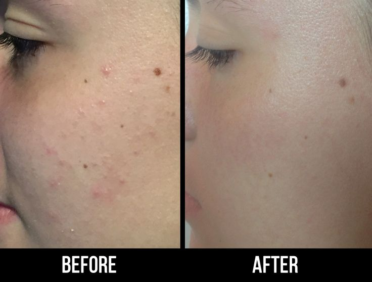 We love seeing real success stories! Look at these breakout results with GR8SKN! #beforeandafter #transformation #cosmetologist #acne #facial #salonlife #happyclient #acnetreatment #acnefree #results #acnesolution #vegan #success #skincare #clearskin #bblogger #fbblogger #blog #beauty #skin #mua #potd #breakouts #vitamins #probiotics #teatreeoil #lavender #witchhazel #hempseedoil #explore