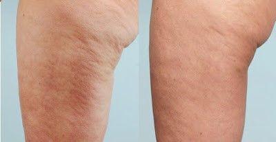 Vida Natural: Cómo eliminar la celulitis y várices de tus piernas? Aquí la solución