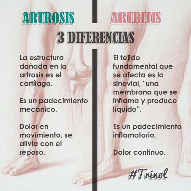 ¿Qué diferencia hay entre artrosis y artritis? Ambas son enfermedades reumáticas crónicas, degenerativas y producen dolor, además comparten que a mayor conocimiento de ellas mejor es su control y prevención.