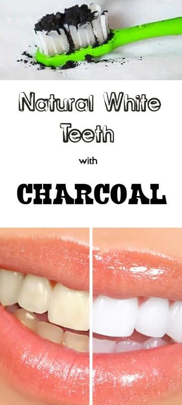 Whiten your teeth naturally - Easy Fast Results