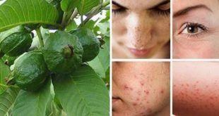 Les feuilles de goyave : Le traitement le plus pertinent pour lutter contre les rides, les taches sombres et les allergies cutanées !