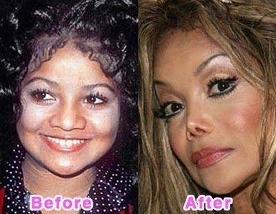 LikePage: 16 Worst Celebrity Plastic Surgery Disasters