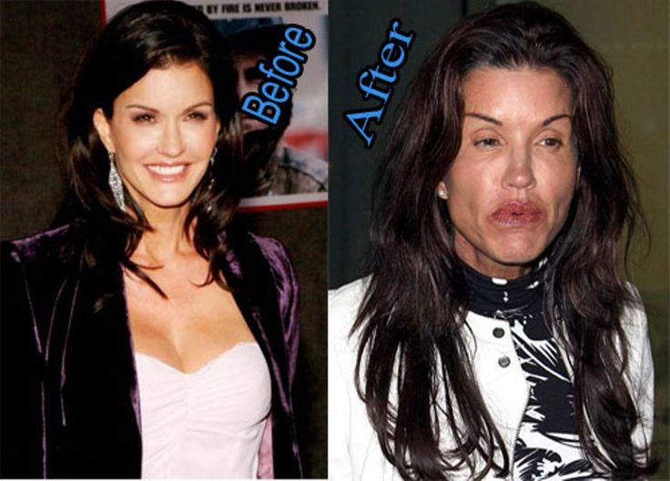 53 Celebrity Plastic Surgery Gone Wrong Before And After