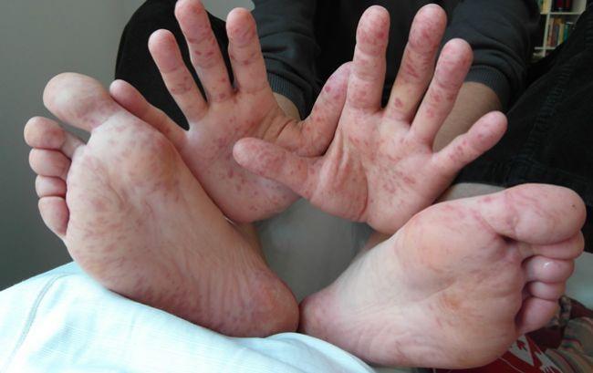 Diagnózy, ktoré dokážete určiť pri pohľade na pokožku