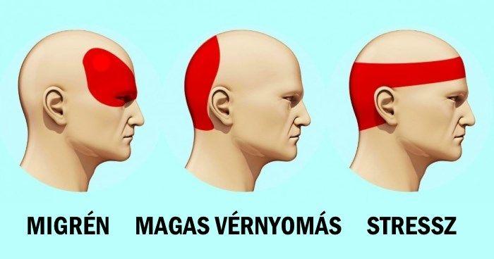 Hogyan lehet megszabadulni a fejfájástól 5 perc alatt tabletta nélkül