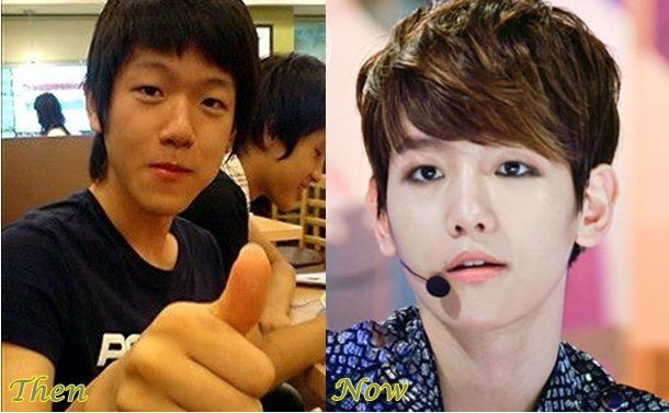 Byun Baekhyun EXO Plastic Surgery Before And After Photos