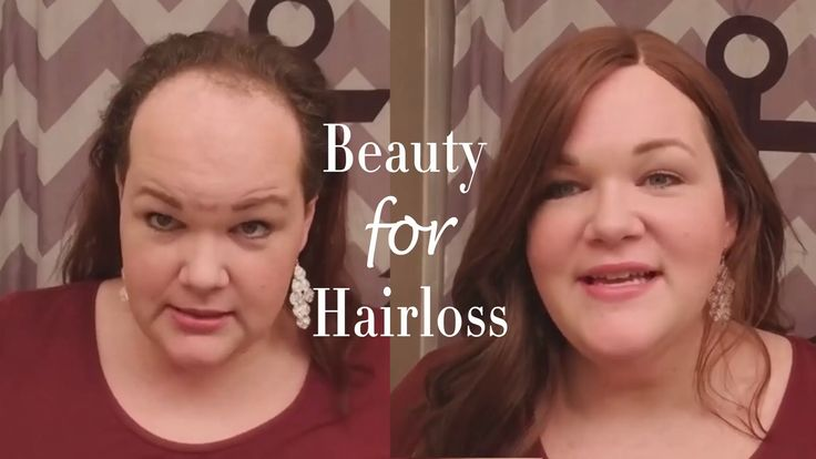 Hair loss also known as alopecia or baldness is