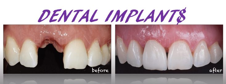 Tooth Replacements And Dental Implants  A smile can enlighten your day and it is with the assistance of a good tooth doctor. The dentist is your best friend to help you improve your smile with healthy teeth. Do you have a broken tooth chipped teeth missing teeth or other dental defects? You are worried about changing colour of teeth? Convey . your knowledge dentist available in Manhattan if reside there is the optimal solution to your personal dental problems. Crucial thing to remember work…