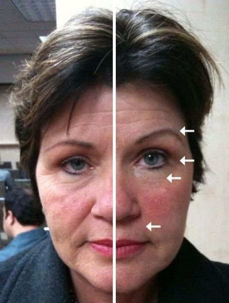 Get Your Very Own Facelift Without Surgery By Tasking Uncomplicated Face Aerobics Treatments