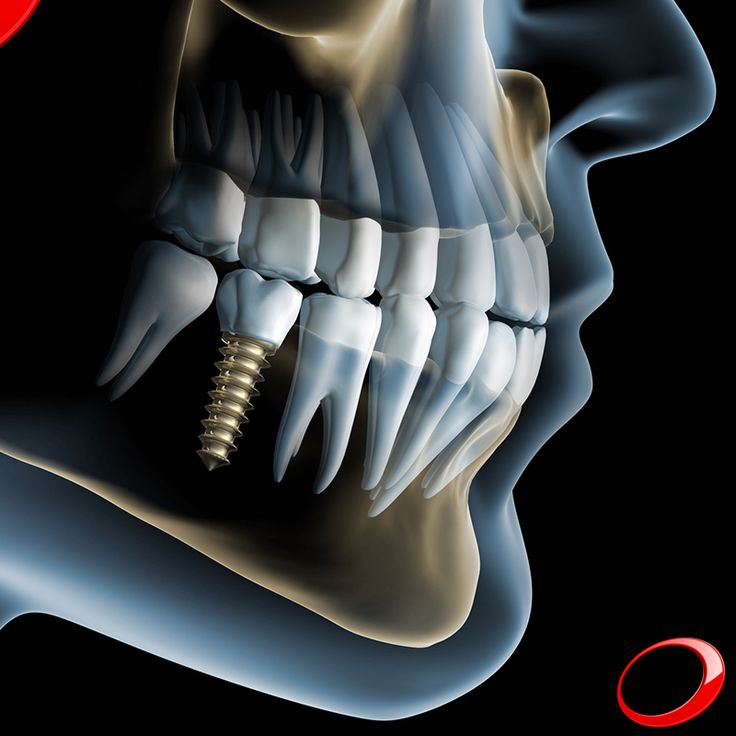 Did you know that Dental Implants have a success rate of approximately 98%? ........................... www.dinp.co.uk (For more info or to schedule a evaluation query, send your contacts by private message) #dentist #implants #smile #clinic #health #healthy #qualityoflife