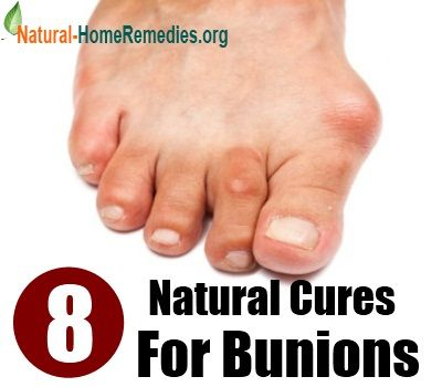 Natural Cures For Gout In Toes