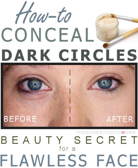 How-to Conceal Dark Circles