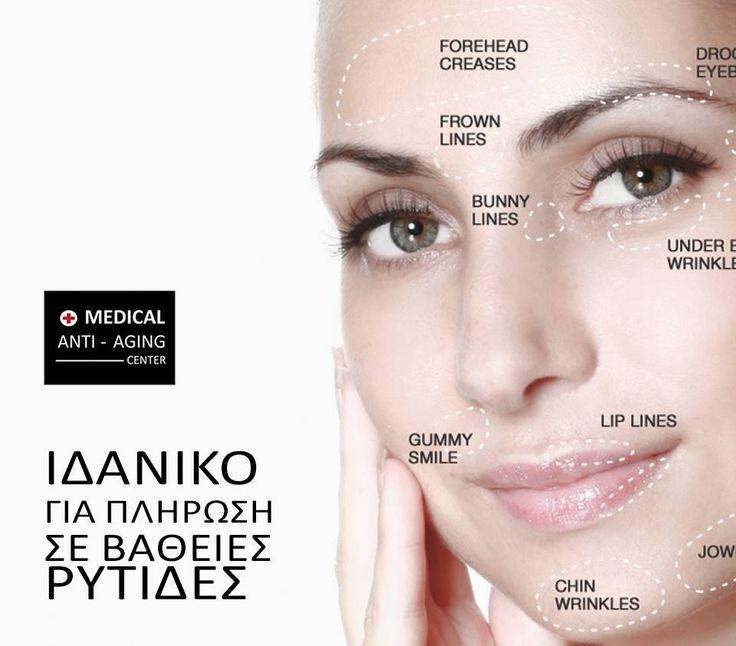 Πείτε Αντίο στις Ρυτίδες❗ Μπείτε στο διαγωνισμό και κερδίστε ΕΝΤΕΛΩΣ ΔΩΡΕΑΝ 5 microfiller υαλουρονικού οξέως για λείανση ρυτίδων και επιδερμική σύσφιξη➡http://www.medicalantiagingcenter.gr/flash172/ Όσοι συμπληρώσουν τα στοιχεία τους Κερδίζουν 1 ΔΩΡΕΑΝ θεραπεία προσώπου❗ @Medical Anti - Aging Center #medical #medicalantiagingcenter #antiaging #antiagingcenter #αντιγηρανση #κοσμητικη ιατρικη #δερματολογια #δερματολογικα #ιατρεια