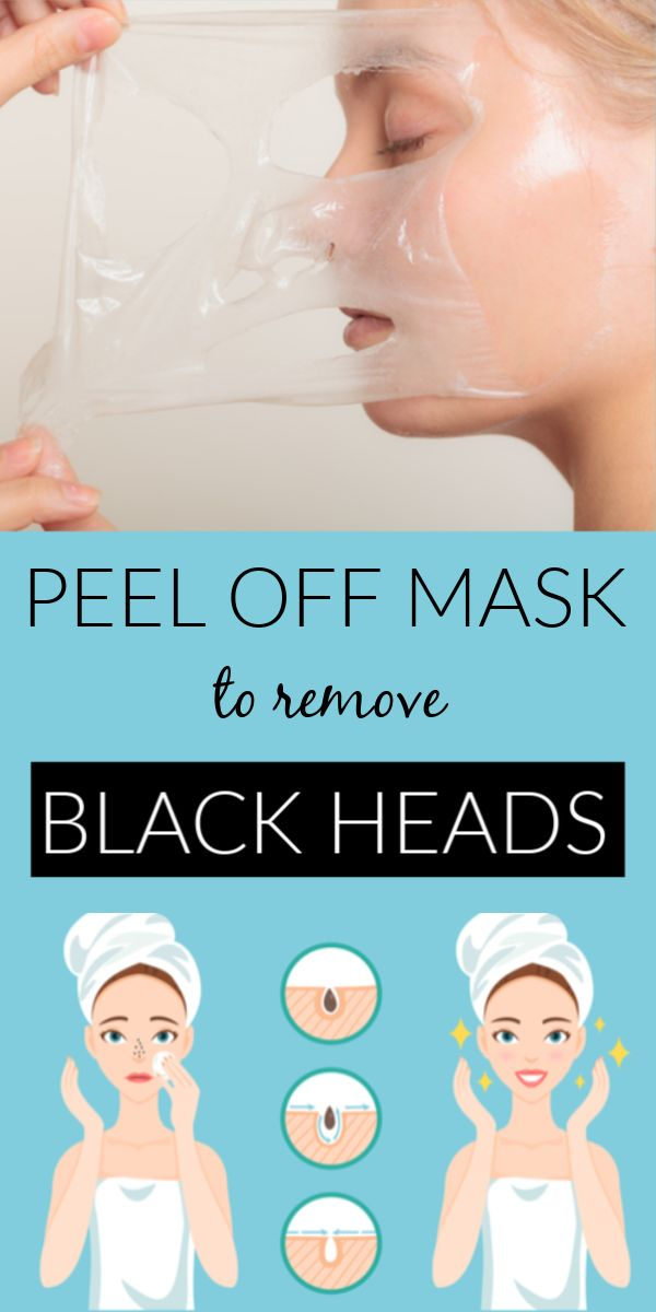 DIY Blackheads peel off, that will remove all your blackheads instantly
