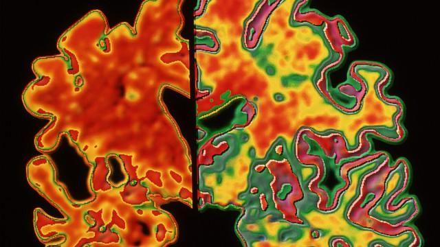 Pesquisadores encontram 'rastros' de doença degenerativa em autópsias; outros especialistas já refutaram os resultados do estudo, dizendo que eles são inconclusivos e que não significam que o Alzheimer possa ser contagioso.