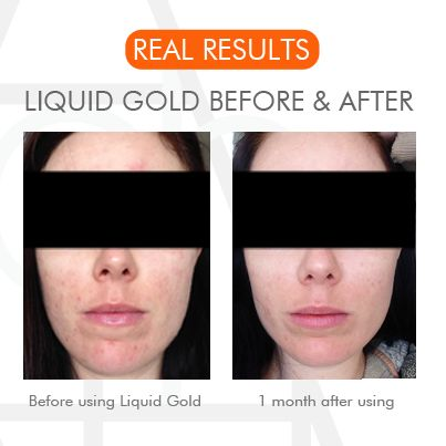 Liquid Gold - The real deal. #liquidgold